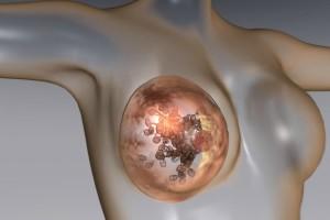 tumore-seno-5-300x200