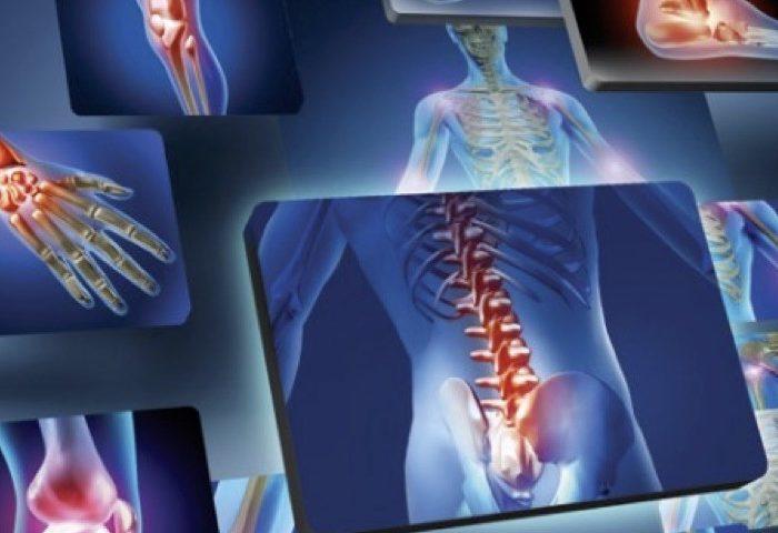 Artrite reumatoide:  rimedi naturali, alimentazione