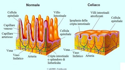 What do you know about Celiac Disease?